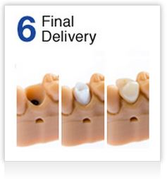 Step 6 Final Delivery
