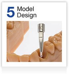Step 5 Model Design