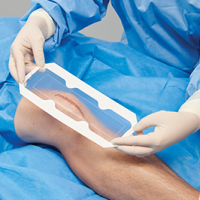 3M™ Tegaderm™ Absorbent Clear Acrylic Dressing covering a surgical incision on the knee.