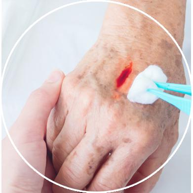 Oczyszczanie rany na ręku
